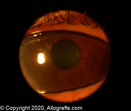 Ocular Tissues